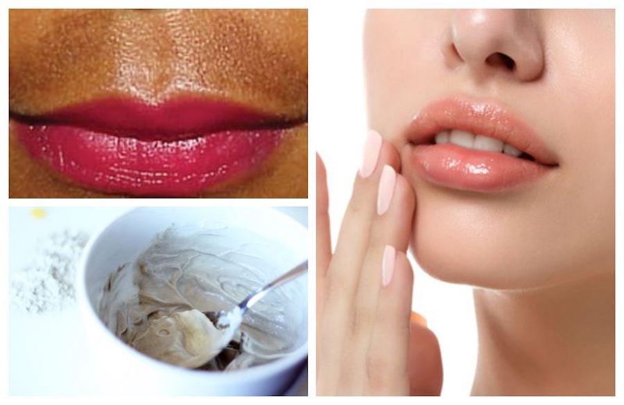 Bliss Spiff Upper Lip for Lines and Hyper-Pigmentation